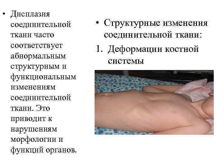 Дисплазия соединительной ткани у детей: лечение, симптомы