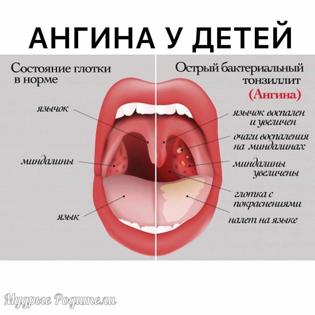 Профилактика детской ангины в домашних условиях