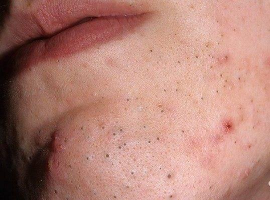 Высыпание прыщей на лице - причины, по зонам, на лице у женщин, у мужчин, при беременности, лечение