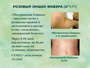 Розовый лишай у ребенка: фото с описанием, лечение, причины и симптомы