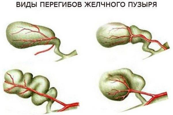 Перегиб желчного пузыря - симптомы и лечение, последствия