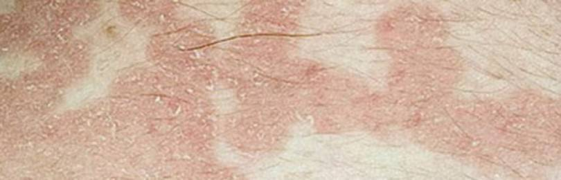 Сыпь у ребенка в паховой области у мальчика фото и лечение