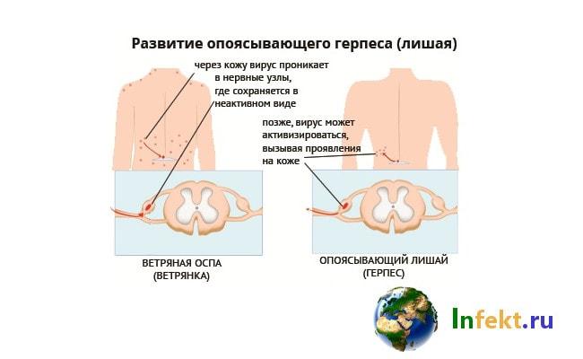 Опоясывающий герпес: симптомы, фото, лечение
