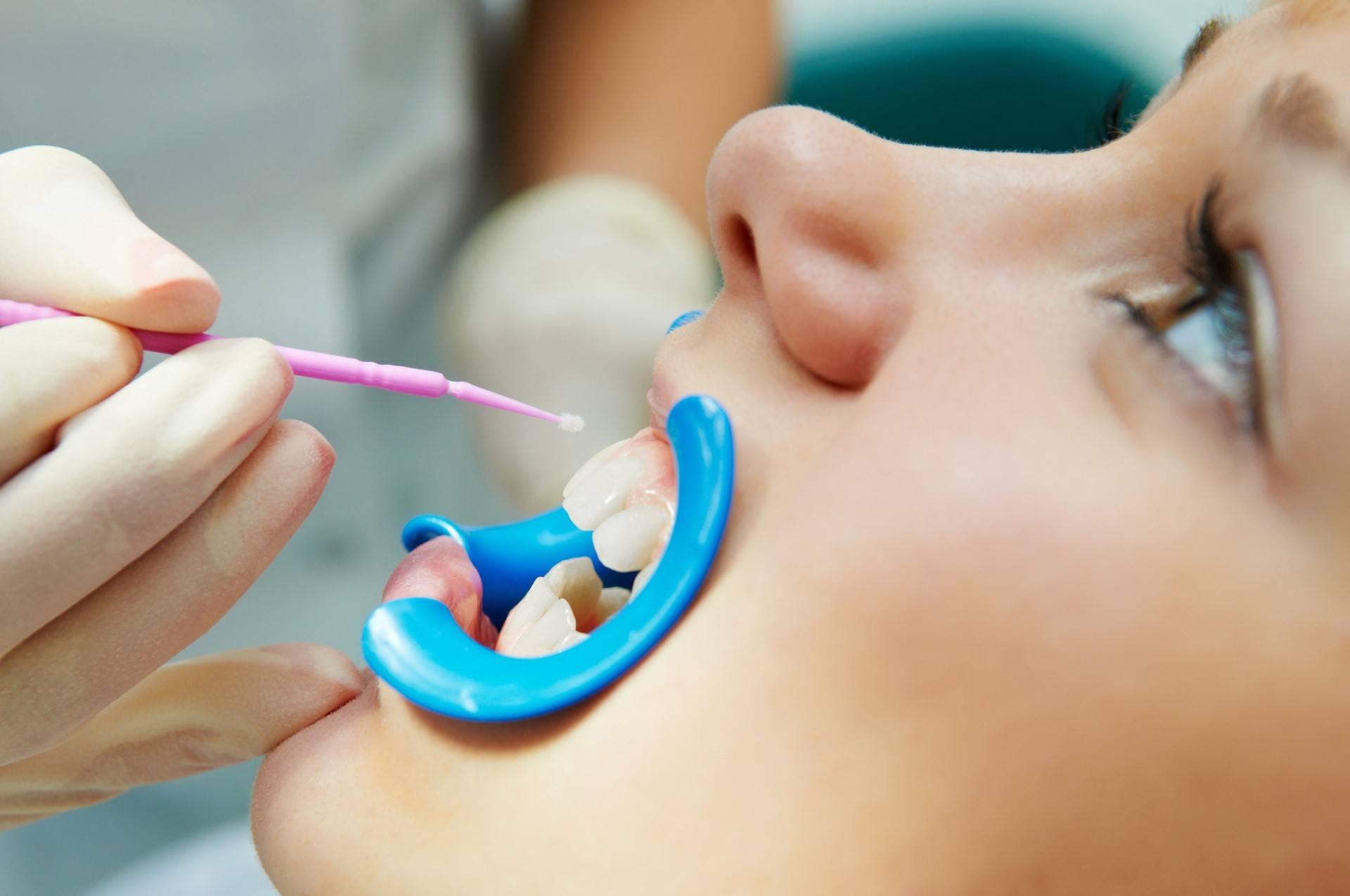 Фторирование зубов у детей — что это такое, как выглядит на фото до и после процедуры?