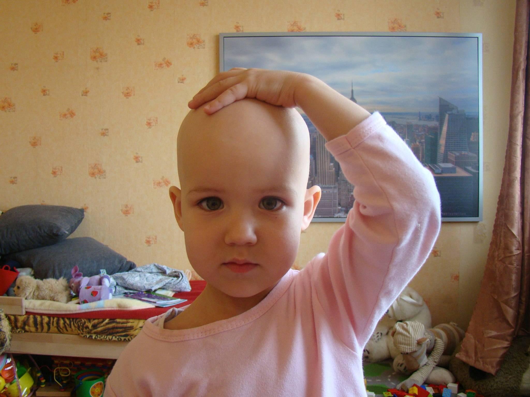 Выпадают волосы местами у ребенка