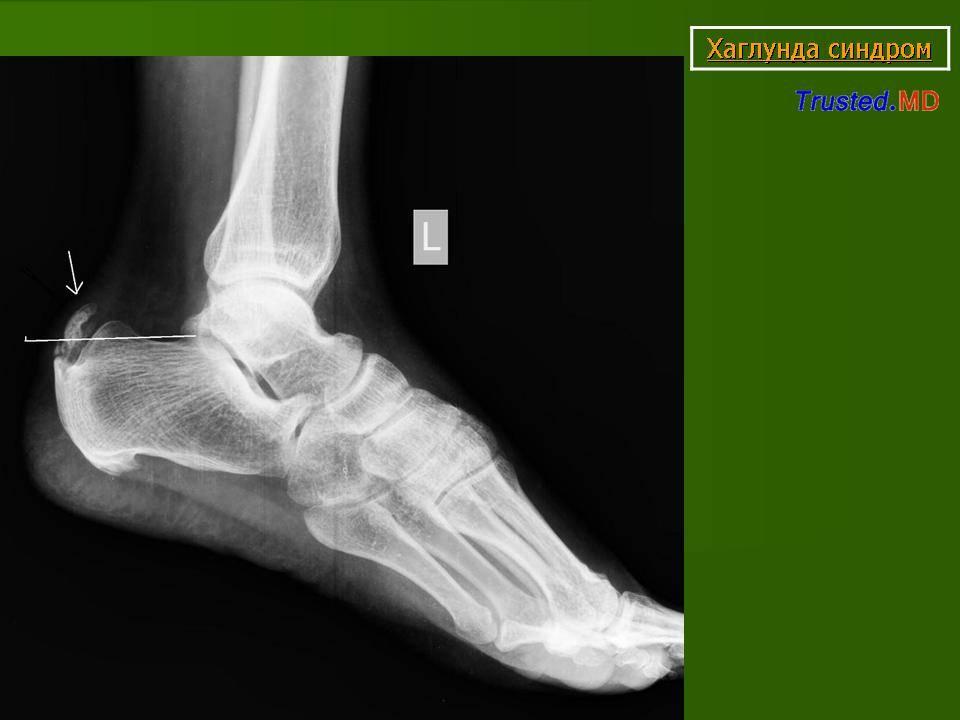 Болезнь шинца, чем опасна остеохондропатия пяточной кости?