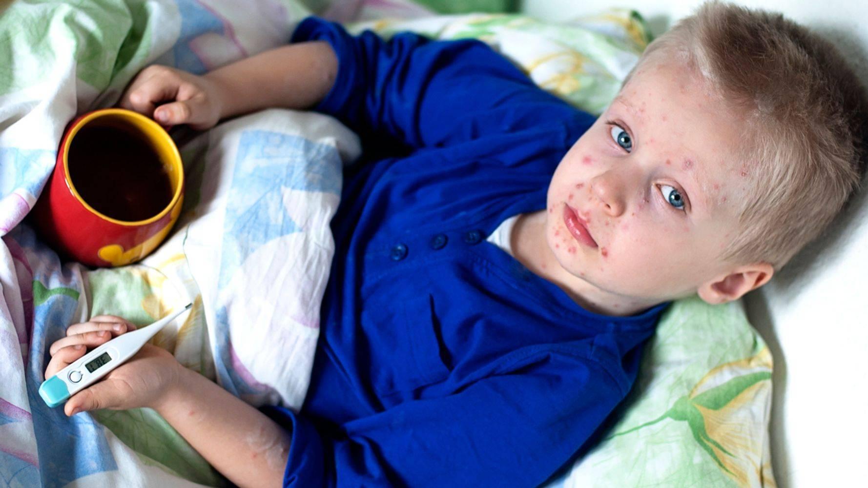 Комаровский - чем лечить вирусную пузырчатку у детей: фото, симптомы, лечение