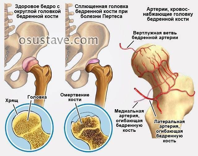 ✅ болезнь пертеса у детей - симптомы заболевания тазобедренного сустава, причины и лечение - zapis-na-priem.ru