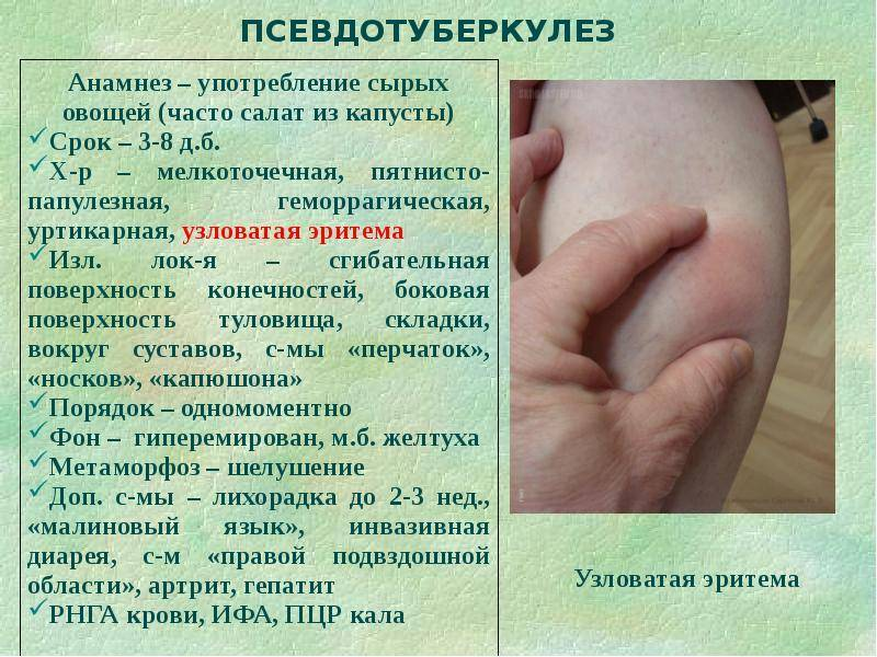 Вирусная инфекция у детей симптомы и лечение сыпь