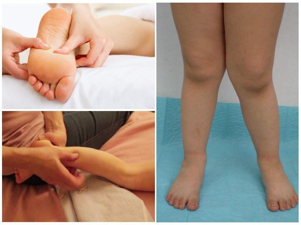 Варусная деформация стопы у детей (19 фото): лечение и виды, обувь