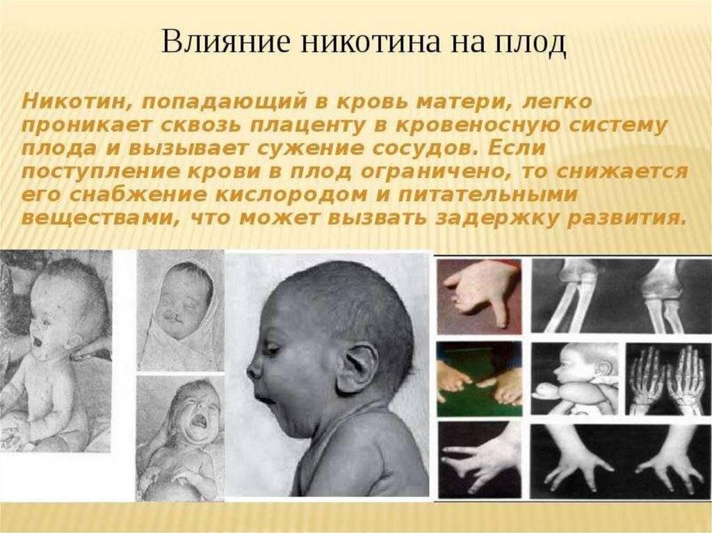 Влияние наркотиков на эмбриональное развитие ребенка