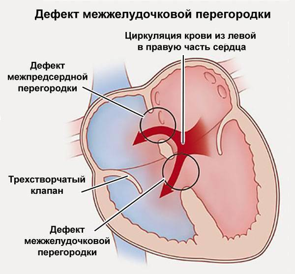 Дефект межжелудочковой перегородки сердца у новорожденных, взрослых, детей, лечение