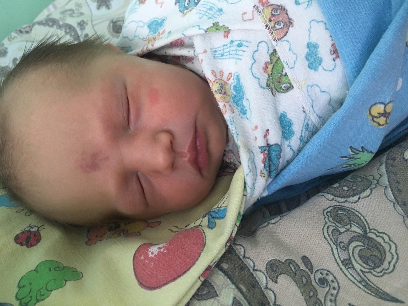 Родимые пятна у новорожденных: как различаются и чем опасны? - новорожденный. ребенок до года