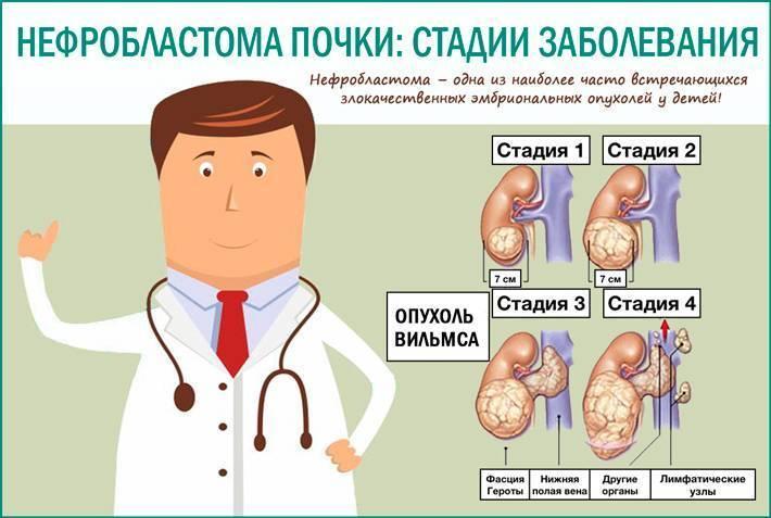 Опухоль вильмса у детей (нефробластома): патологическая анатомия, симптомы, лечение и прогноз на будущее