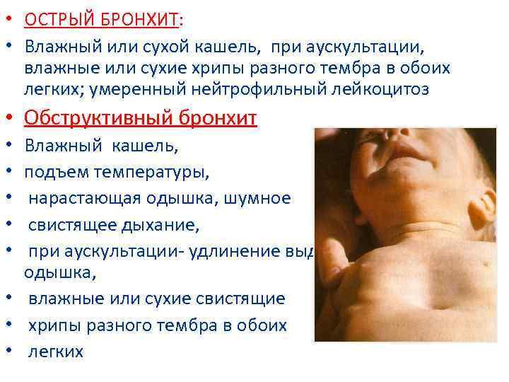 Бронхит у грудных детей