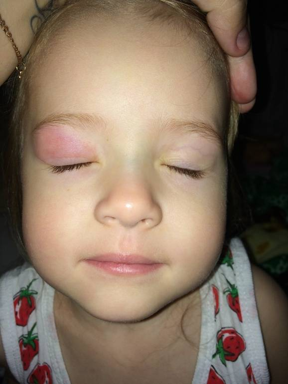 Как перестать расчесывать комариный укус. как снять зуд от укусов комаров в домашних условиях