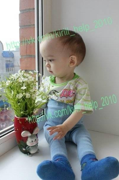 Мраморная болезнь у детей: симптомы остеопетроза с фото
