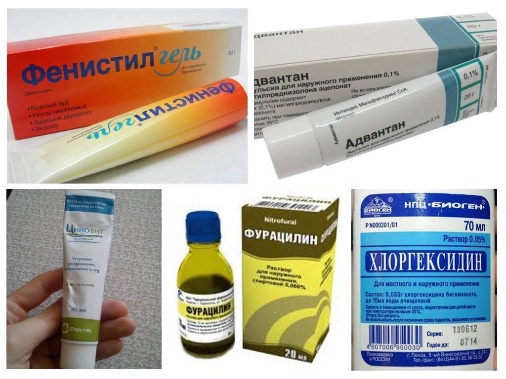 Средство от укусов комаров: мазь, гель, народные методы - чем лучше снимать зуд?