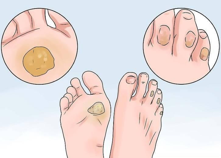 Причины и лечение мозоля на пальце ноги у ребенка | musizmp3.ru