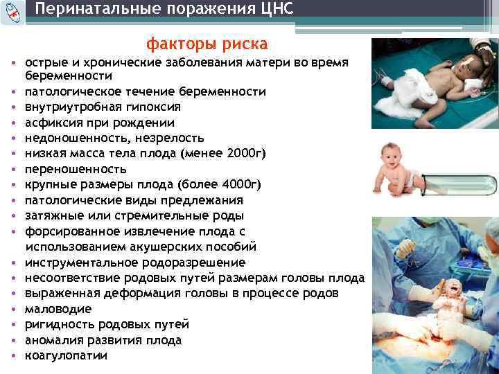 Поражение цнс у новорожденных - причины, симптомы, лечение