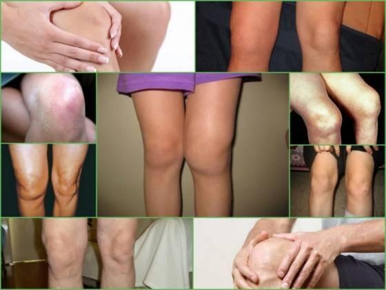 Артрит коленного сустава у ребенка — суставы