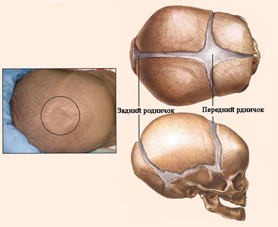 Впалый родничок у грудничка: причины и что с этим делать