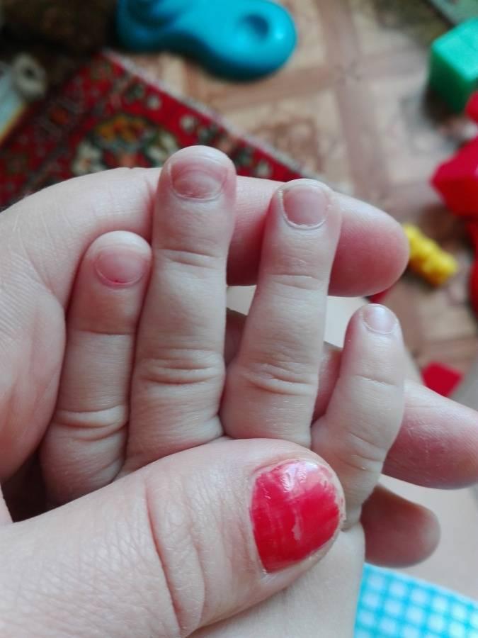 Если слоятся ногти на ногах у ребенка