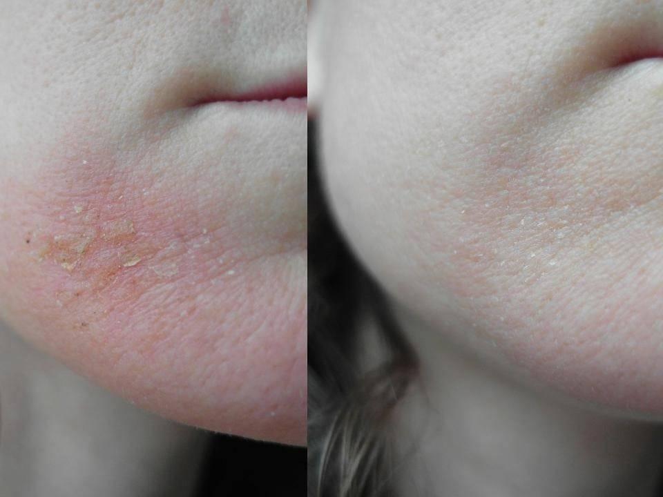 Трескается и шелушится сухая кожа: причины, что делать и как лечить