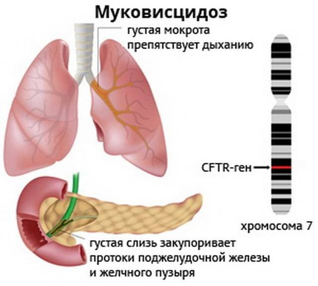 Муковисцидоз – это что за болезнь, ее симптомы и лечение - сайт о