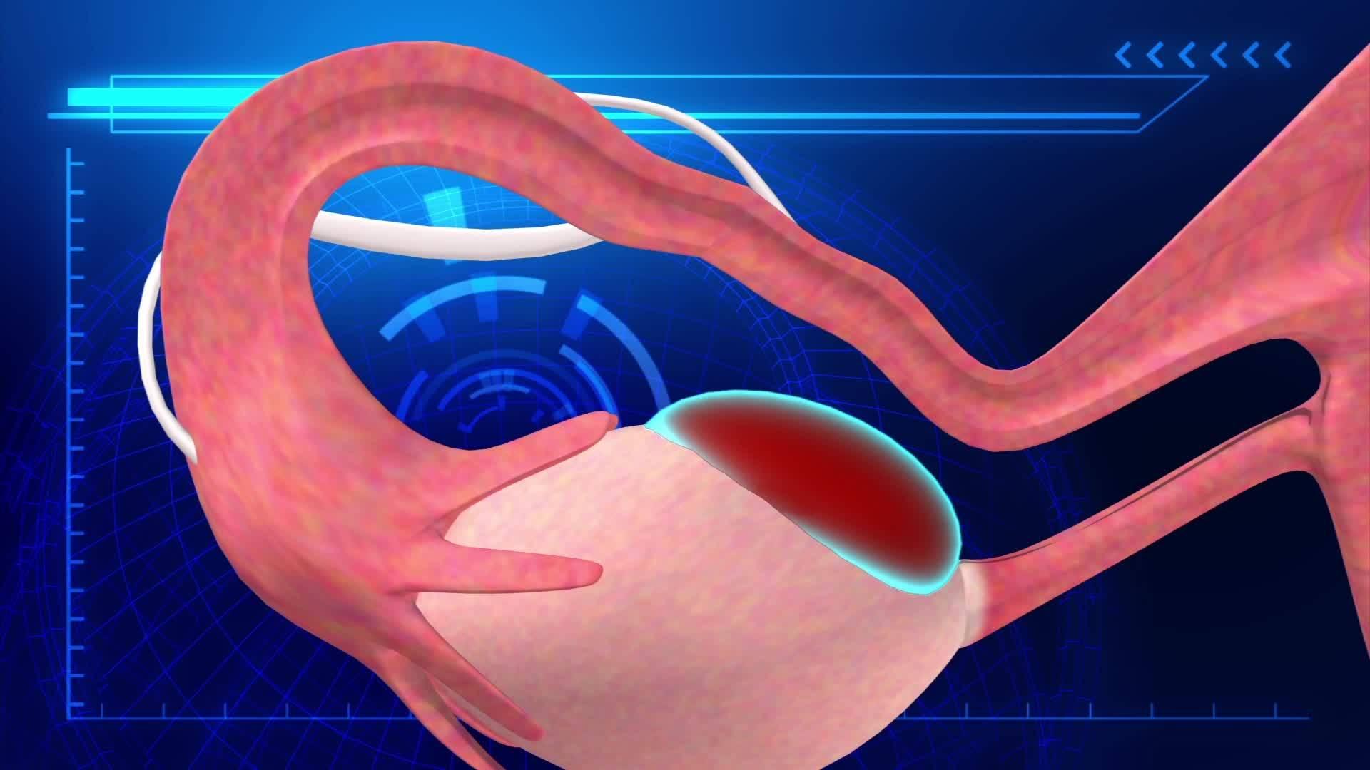 Почему не приживается эмбрион после переноса при эко