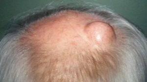 Шишка у ребенка на голове: ???? вопросы хирургии и советы по лечению