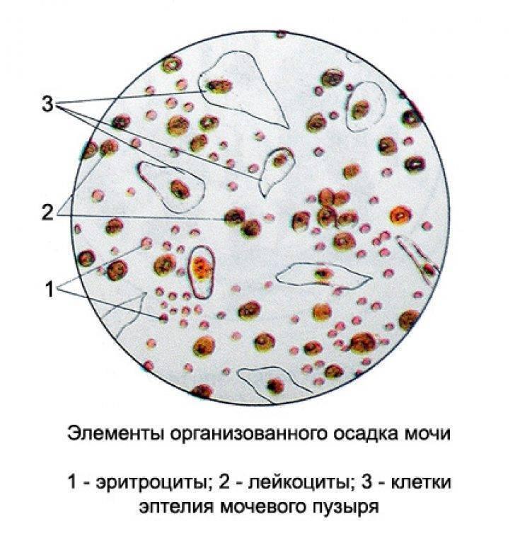 Большое количество слизи в моче говорит о патологии мочеполовой системы