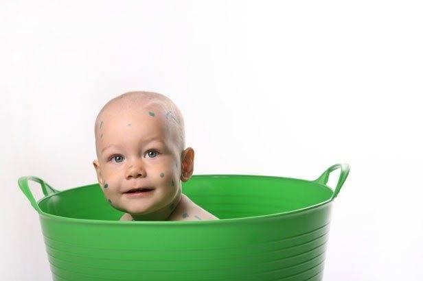 Когда можно купать ребенка после ветрянки? развенчиваем мифы