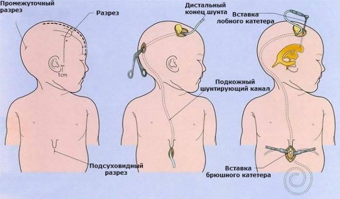 Внутричерепное давление у грудничков (30 фото): симптомы и признаки у новорожденных, лечение повышенных значений, как определить и как проявляется