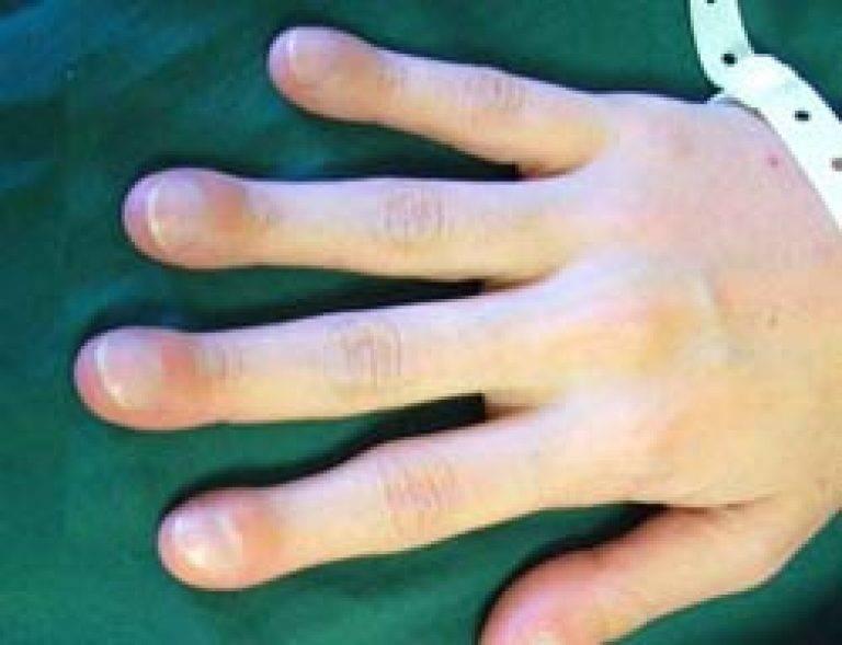Муковисцидоз. причины, симптомы, диагностика и эффективное лечение