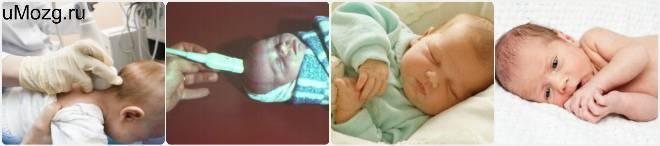 Причины, диагностика и лечение субэпендимальной кисты у новорожденного ребенка - врач-невролог
