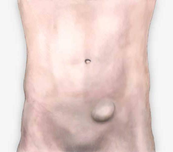 Паховая грыжа у детей (26 фото): как выглядит, симптомы у мальчиков и девочек, новорожденных, пахово-мошоночная и грыжа яичка у младенца, лечение