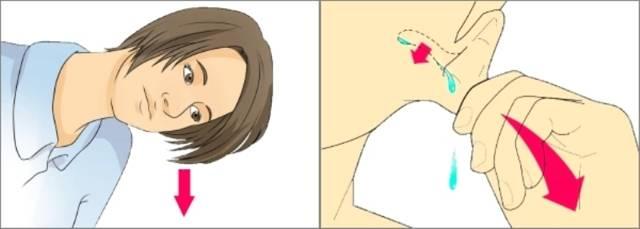 Вода в ухе ребенка после купания и как убрать воду из ушей