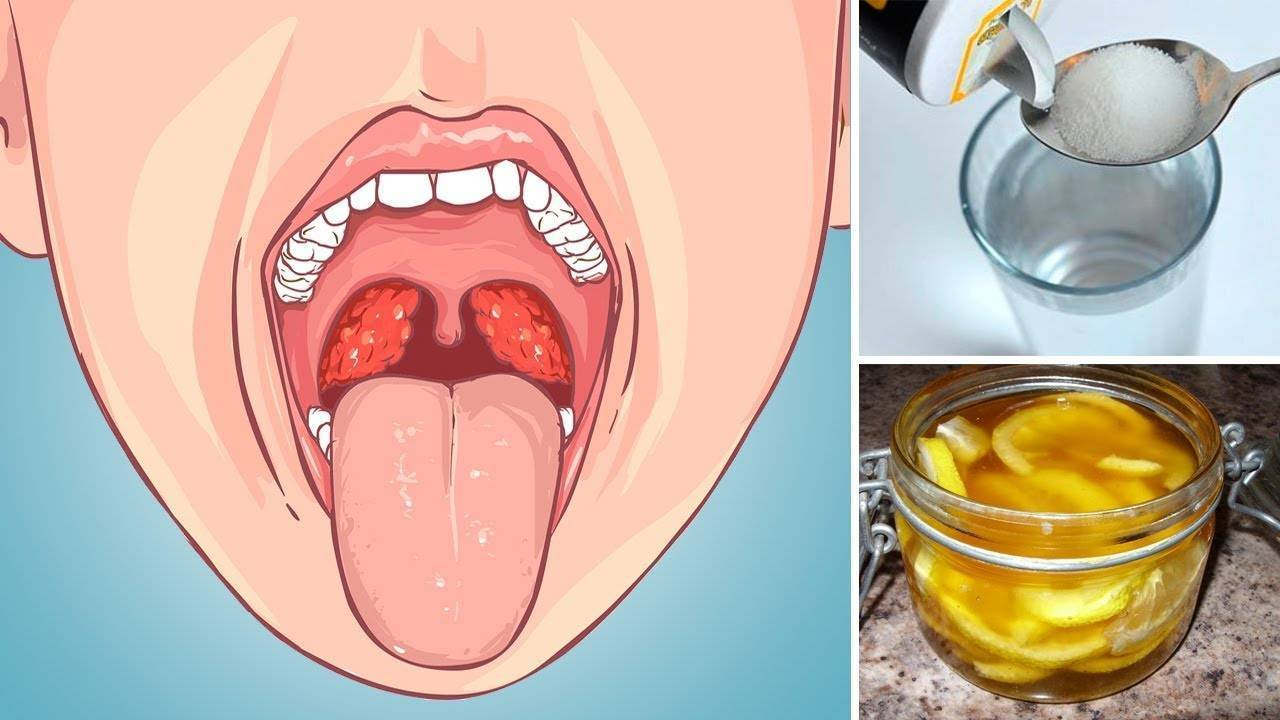 Лечение горла у детей при инфекциях и воспалении