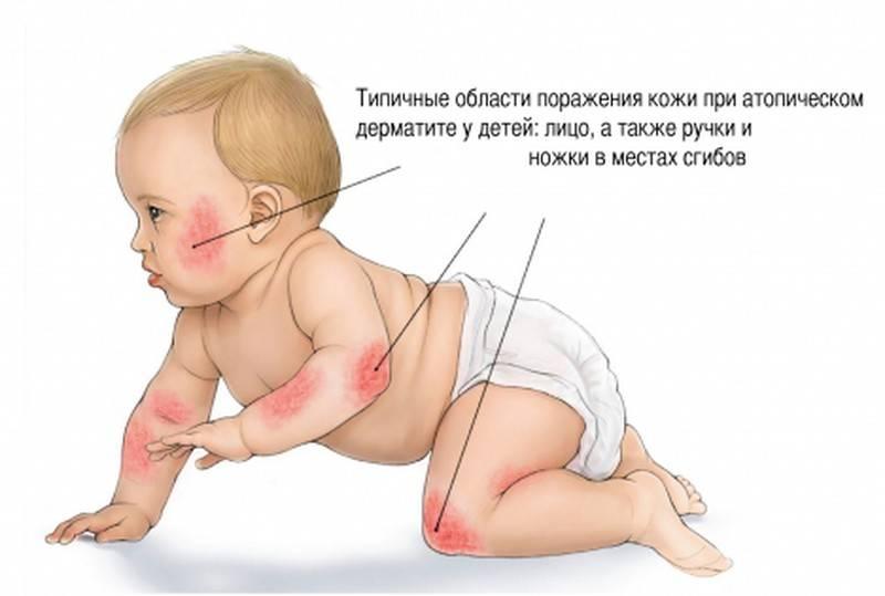 Диатез у детей симптомы и лечение профилактика фото и взрослых