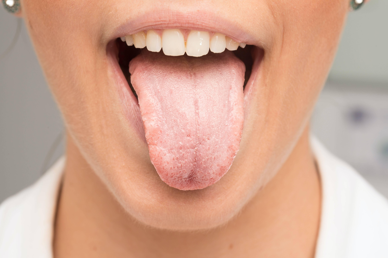 Сухость во рту: причины какой болезни. причины сухости во рту у ребенка, симптомы и способы лечения ксеростомии симптомы сухого рта причины
