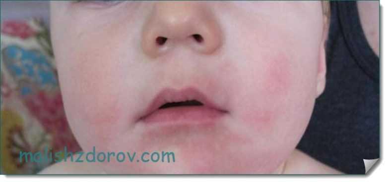 Аллергия на собаку у ребёнка - причины, симптомы и лечение