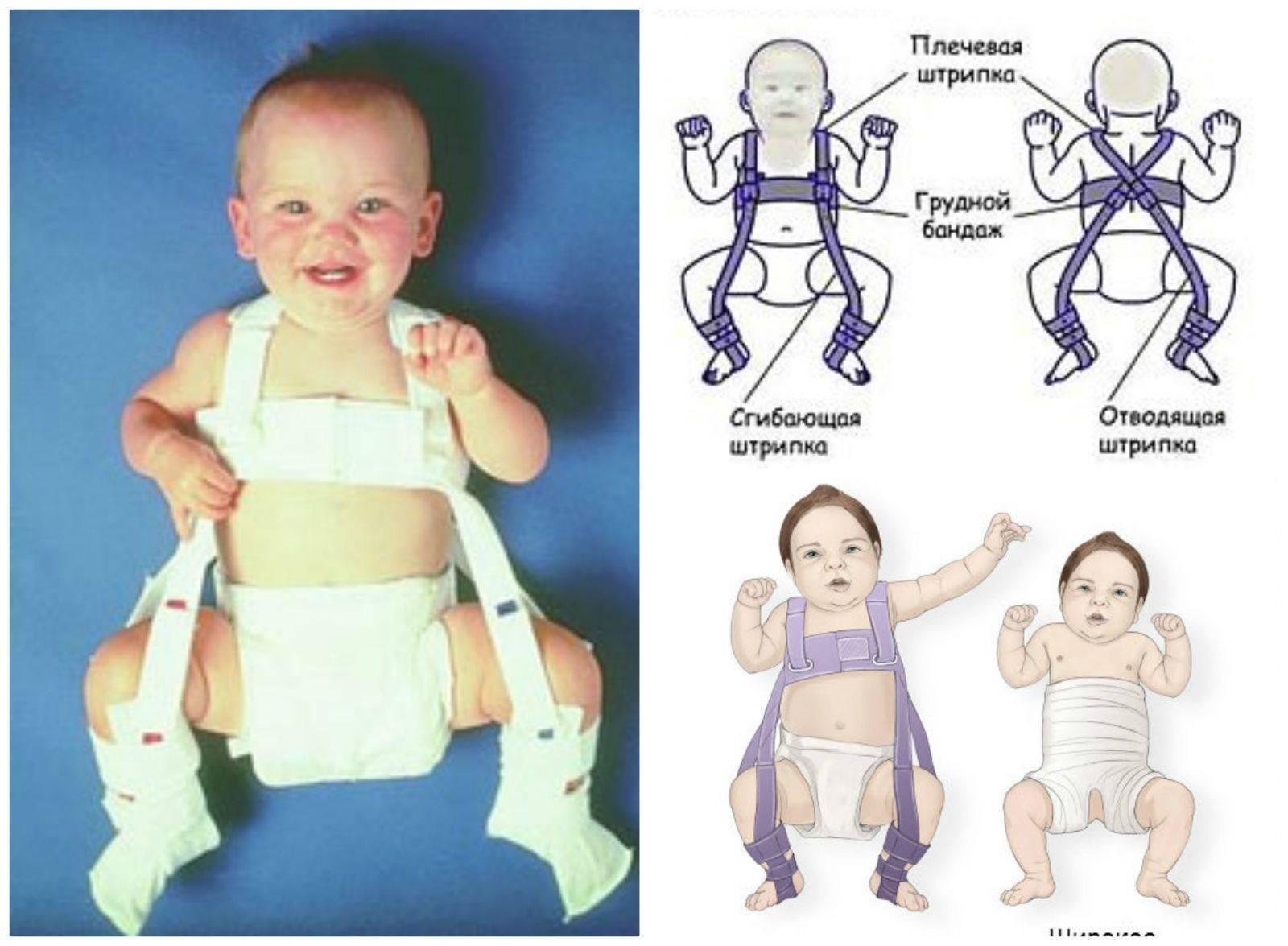 Определение дисплазии тазобедренных суставов видео