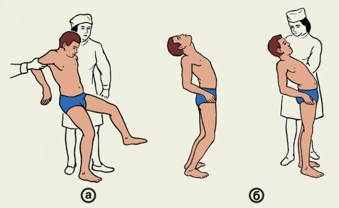 Восстановление после компрессионного перелома позвоночника у детей - все про суставы