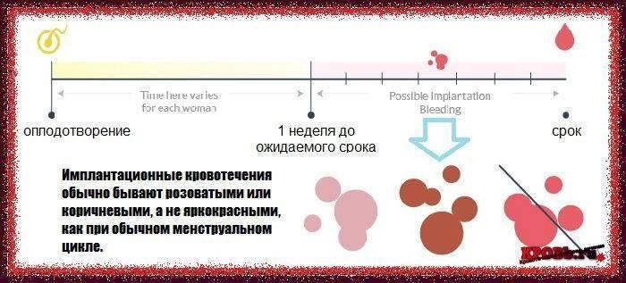 Имплантационное кровотечение: на какой день после зачатия наступает, как отличить от месячных?
