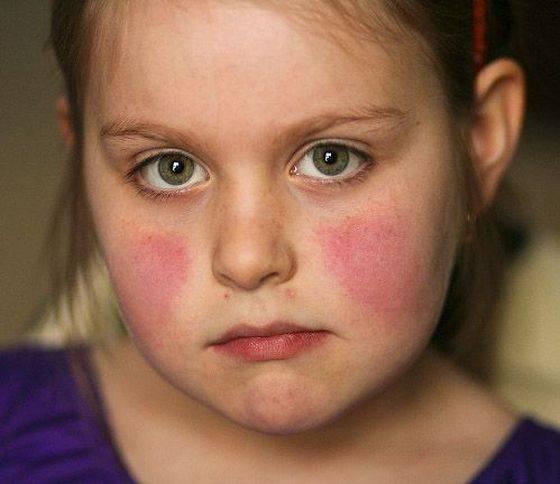 Все 28 видов эритемы – фото, симптомы и лечение