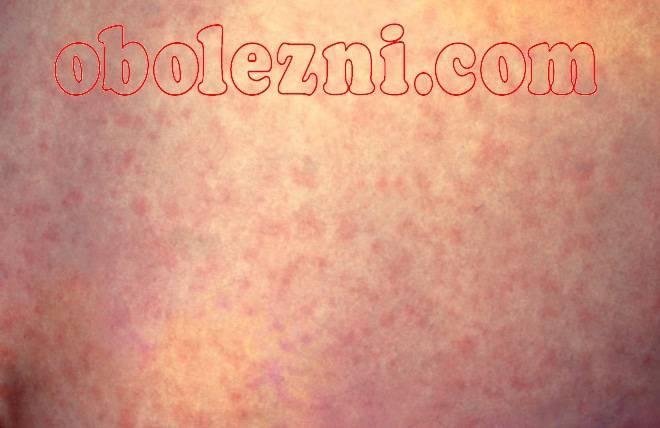 Детская болезнь розеола: причины, симптомы и лечение