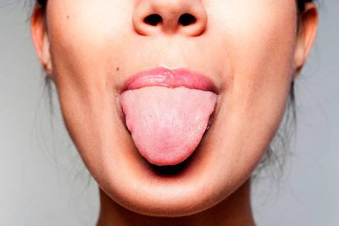 Сухость во рту: почему возникает и как ее лечить? причины сухости во рту у ребенка, симптомы и способы лечения ксеростомии сухость во рту с кровью.