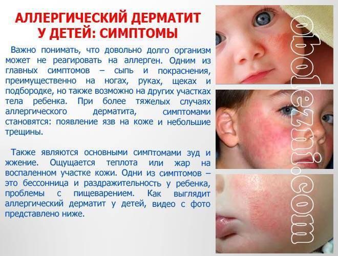 Аллергия на клеща домашней пыли у ребенка | неталлергии!