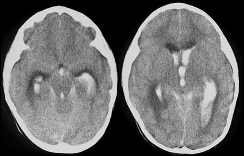 Кровоизлияние в левом желудочке мозга у новорожденного. лечение и прогноз. правильное определение тактики родоразрешения